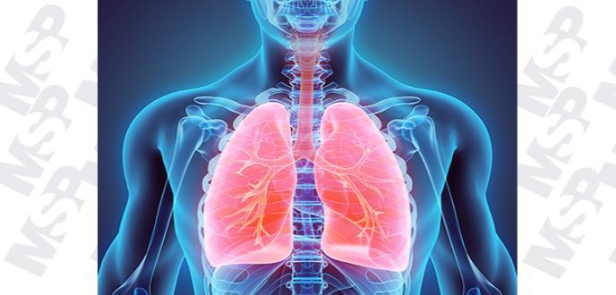 Una función pulmonar baja puede aumentar el riesgo de muerte prematura