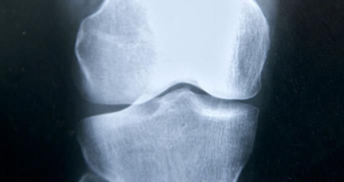 Una mutación predispone a la fractura de fémur en pacientes con osteoporosis