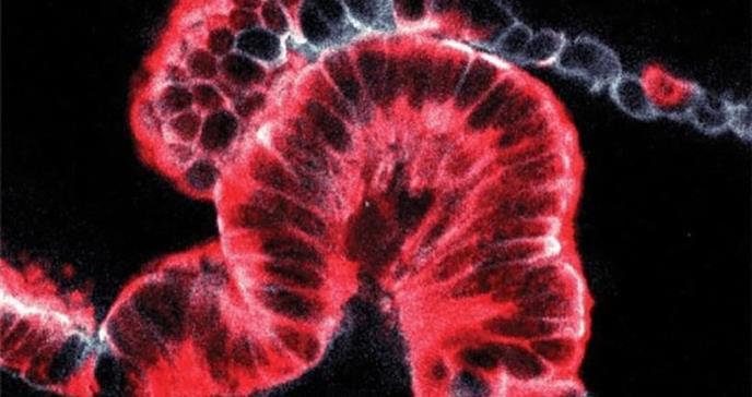 Innovadora técnica muestra el cáncer de páncreas en 3D y da pistas sobre su origen