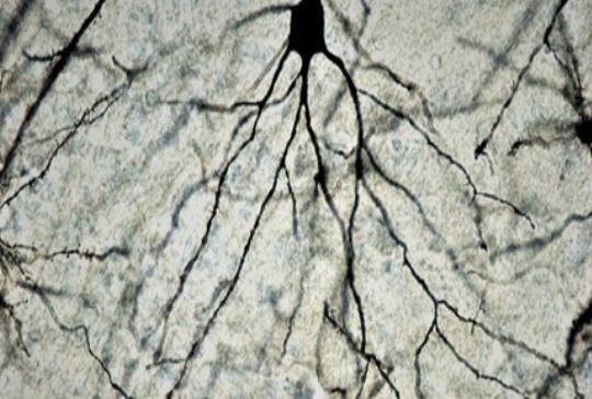 Una terapia molecular permite tratar el ictus en su fase aguda