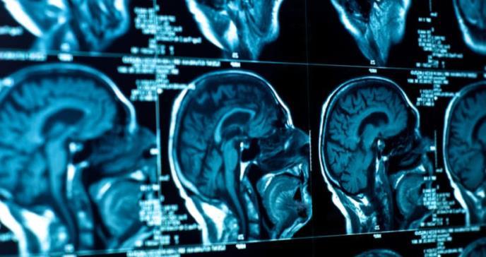 Una vacuna personalizada mejora la supervivencia contra el cáncer cerebral más letal