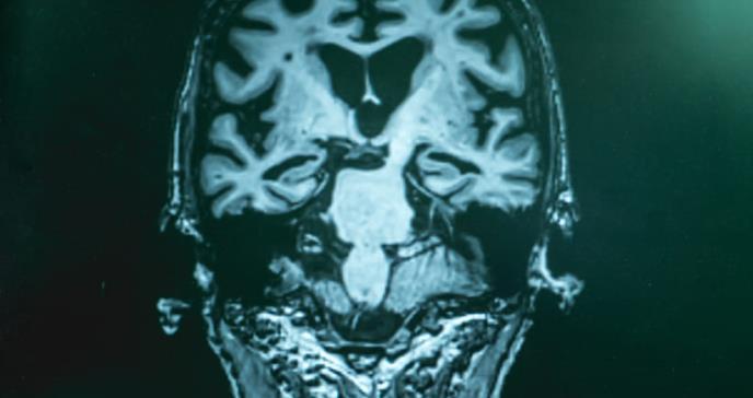Hallan posible método para restaurar la memoria en afectados con alzhéimer