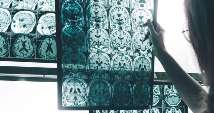 Un estudio encuentra relación entre la diabetes no tratada y el alzhéimer