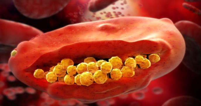 Fármaco de única dosis evita la recaída de la malaria en afectados