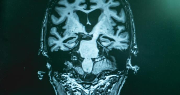 Un fármaco para la hipertensión, prometedor para el alzhéimer