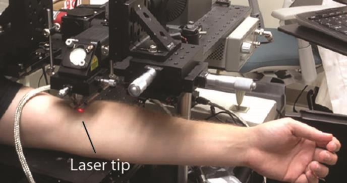Un láser detecta las células precursoras del melanoma en segundo