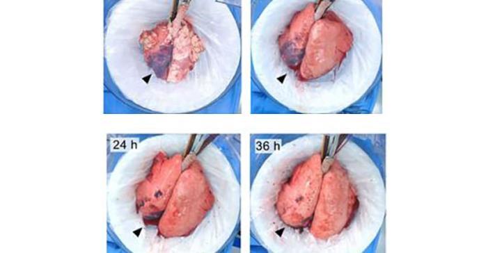 Un sistema rehabilita pulmones dañados y los hace aptos para el trasplante