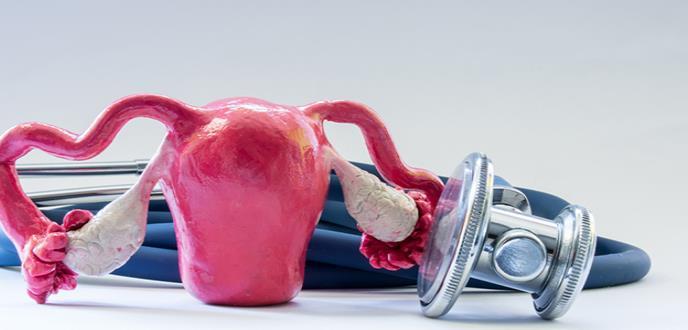 Nueva diana terapéutica contra la metástasis en cáncer de ovario