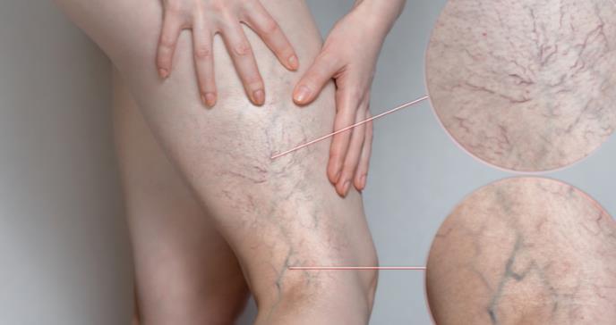 Vital detectar a tiempo la trombosis venosa para evitar serias complicaciones