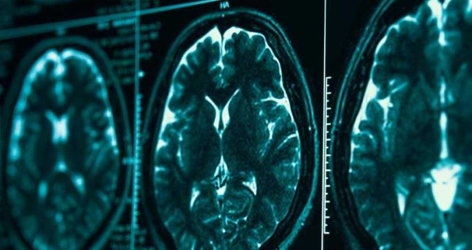 Vinculan la falta de calidad del sueño al riesgo de alzhéimer