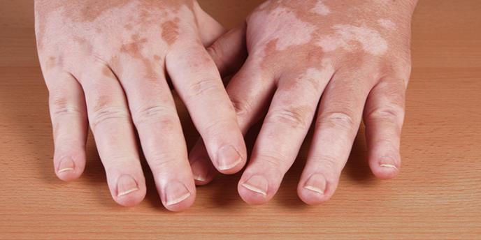 Las afecciones inmunes y su repercusión adversa en la piel