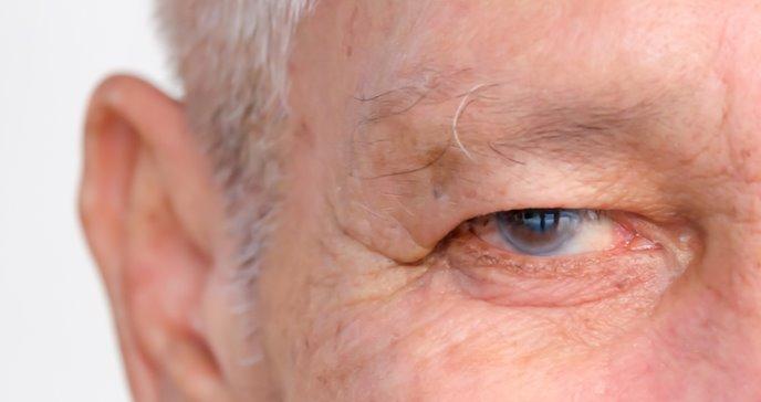 Estudio asegura que se puede detener células de envejecimiento para el desarrollo del glaucoma
