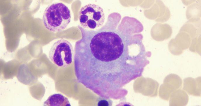 Nuevos genes en la evolución del mieloma múltiple
