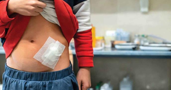 Manejo y Diagnóstico de Colecciones Intraabdominal Post-apendectomía en Niños