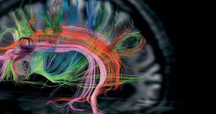 Neuroimagen en Esclerosis Múltiple (EM)