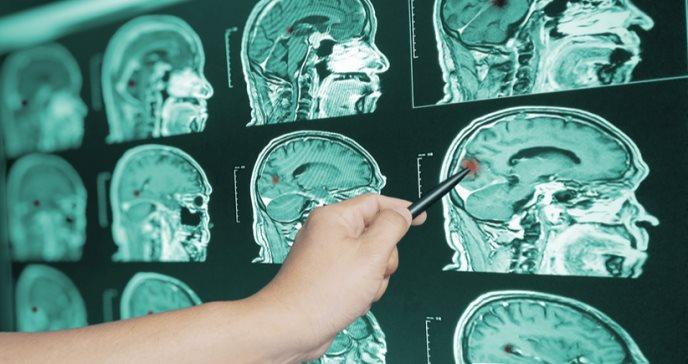 Síntomas que produce el sangrado en el interior del cerebro