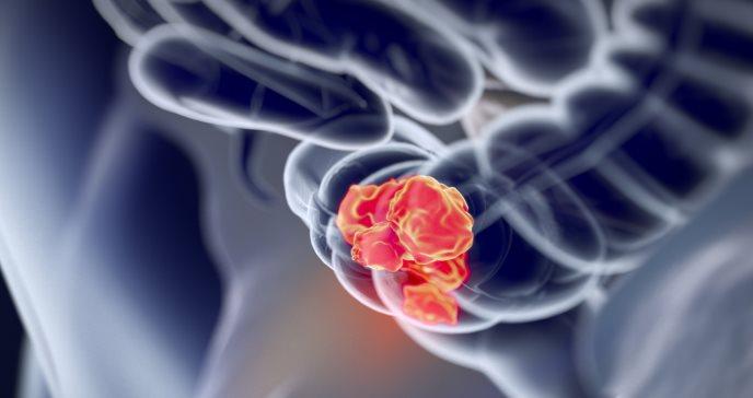 Factores de riesgo relacionados con el cáncer colorrectal