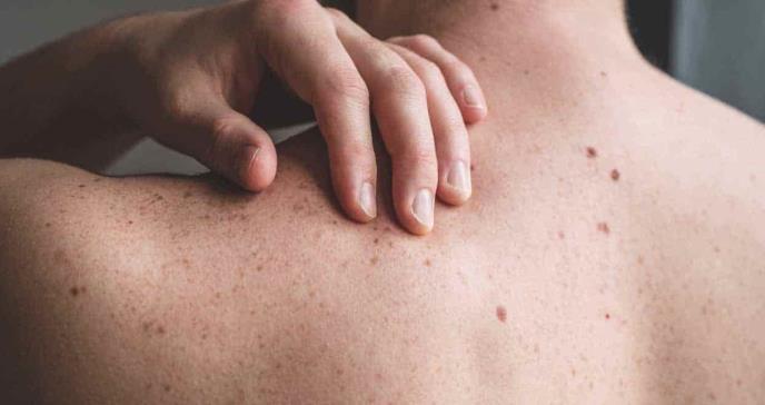 Paciente boricua enfrenta exitosamente diagnóstico de melanoma en etapa tres