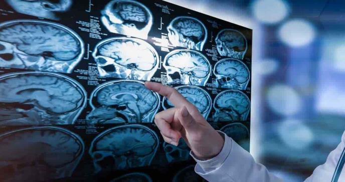 Síntomas tempranos de la esclerosis múltiple