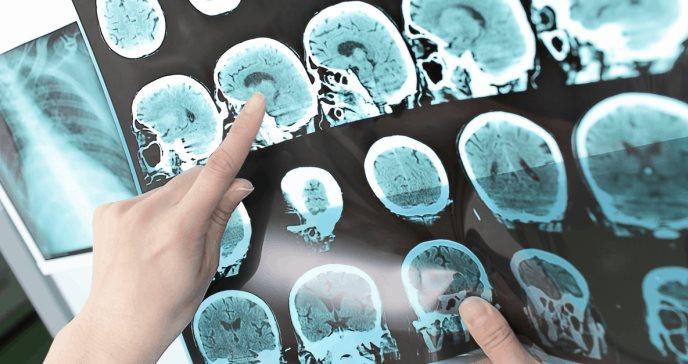 La vacuna de la COVID abre una nueva vía contra la esclerosis múltiple