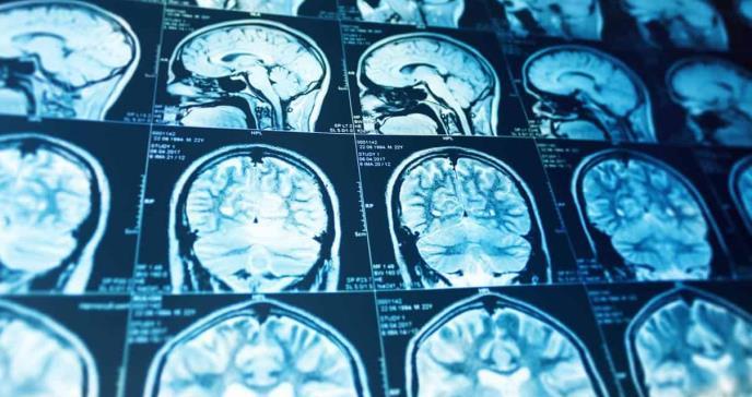 Avances clínicos de la Esclerosis Múltiple