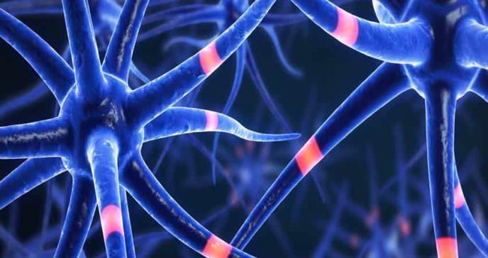 Identificación de fenotipos cognitivos de Esclerosis Múltiple
