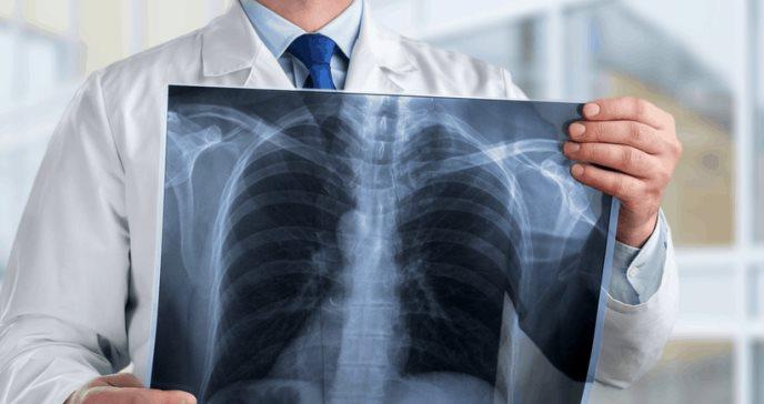 Pacientes con cáncer de pulmón tienen mayor riesgo de desarrollar COVID-19 severo, reveló estudio