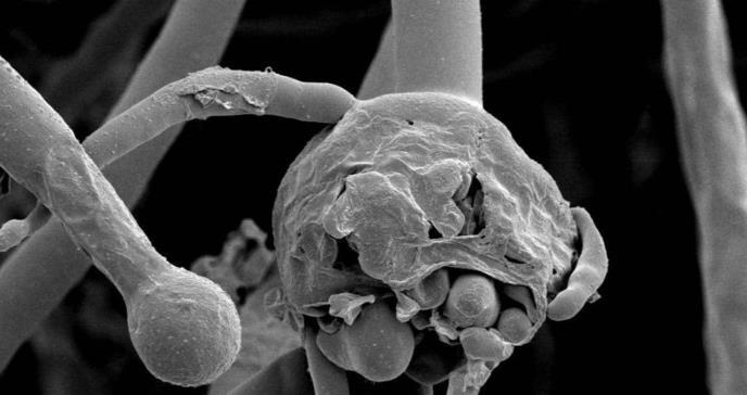 """6 preguntas claves para entender el """"hongo negro"""" que ataca a pacientes de Covid-19"""