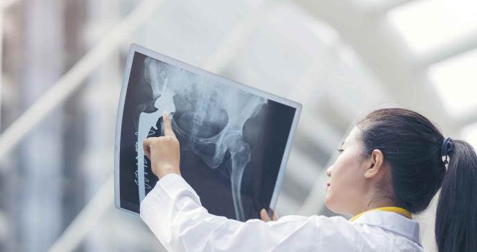 Las diez enfermedades más frecuentes  en los huesos