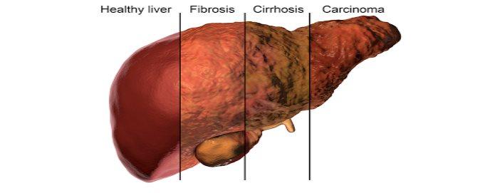 Los tratamientos contra la hepatitis C dan a los pacientes más opciones