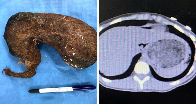 Descubren tumor de cabello humano en el abdomen de joven puertorriqueña