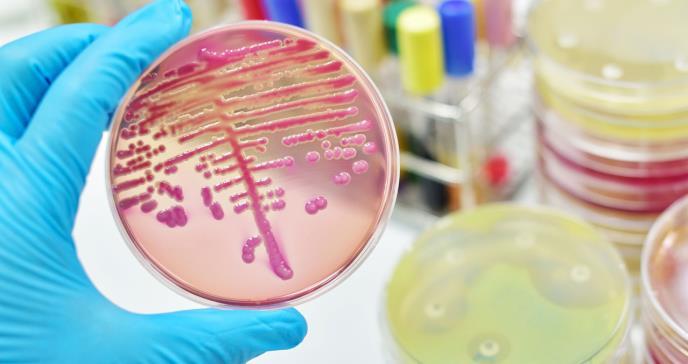 Así es la Klebsiella, una superbacteria que resiste a los antibióticos y se contagia en los hospitales