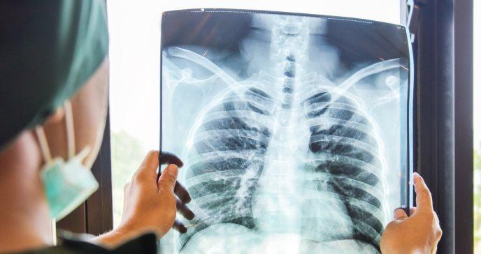 Encuentran cuatro subtipos distintos de bronquiolitis asociados a diferentes riesgos de asma