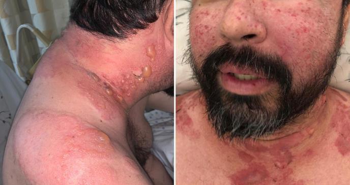Descubren rara variante de lupus eritematoso sistémico bulloso en paciente puertorriqueño