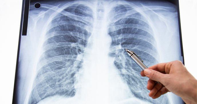 Condición reumática se disfraza con atípica sintomatología que atacó al pulmón
