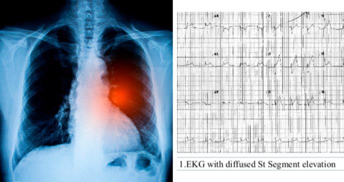 Dolor de pecho en joven de 22 años culmina con diagnóstico de cáncer de pulmón