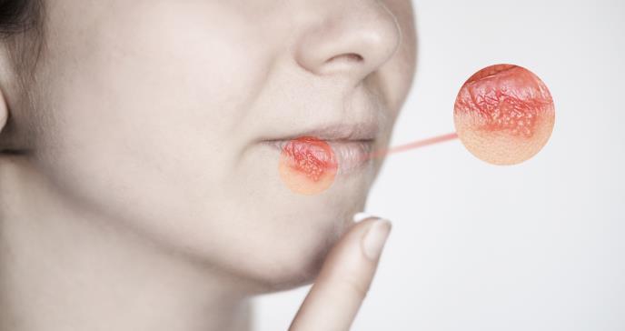 ¿Puedo contraer una enfermedad de transmisión sexual usando condón?