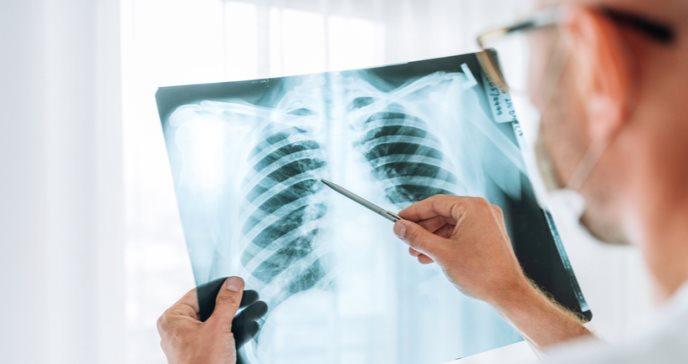 Lesión pulmonar posterior a COVID-19