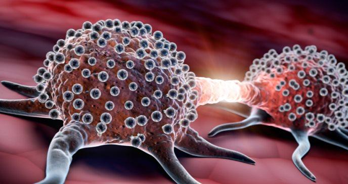 10 datos para entender el mieloma múltiple