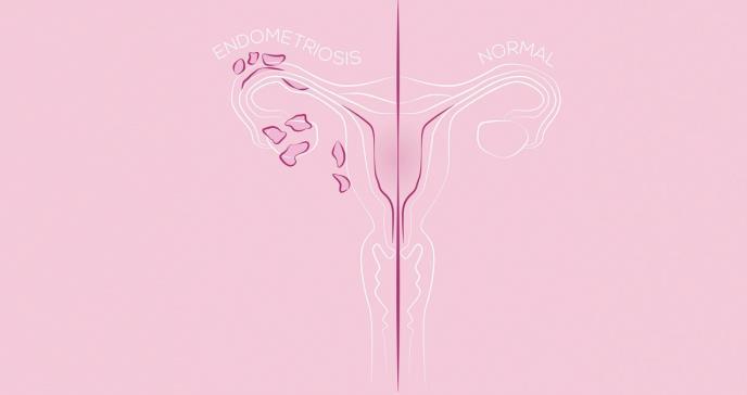 Obesidad y diabetes inciden sobre el cáncer endometrial en mujeres puertorriqueñas