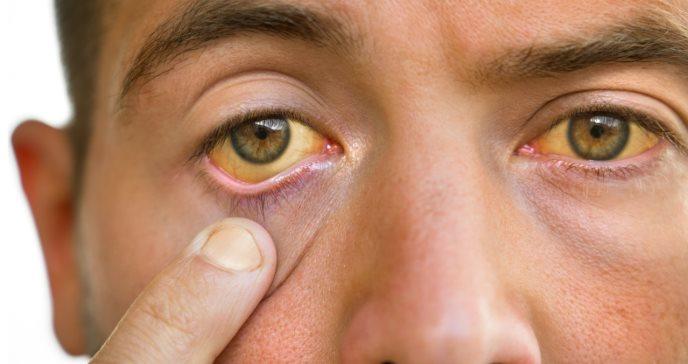 Síntomas y causas de la cirrosis hepática