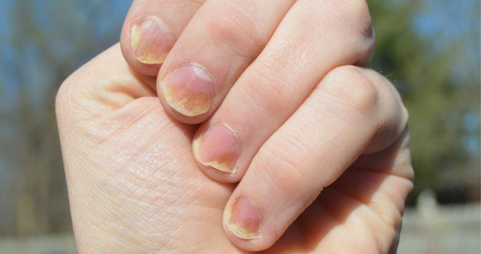 Psoriasis en las uñas, piel y articulaciones de los pies: Consejos para tratar y aliviar esta enfermedad