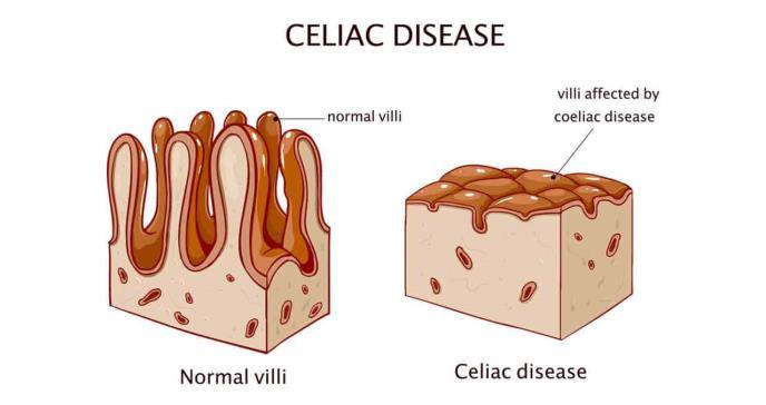 Nuevo inhibidor oral muestra beneficios en pacientes con enfermedad celíaca