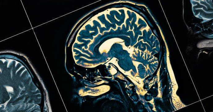 La epilepsia se vincula con riesgo de eventos adversos cardiovasculares mayores