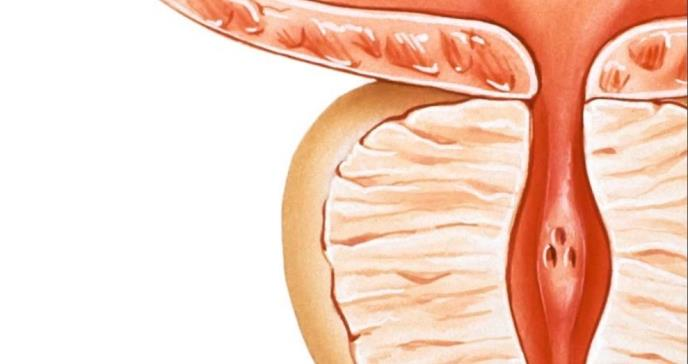 El andrografólido induce daño al ADN en las células del cáncer de próstata