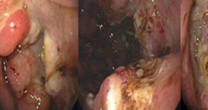 Respuesta a la inmunoterapia de rescate con agente único en pacientes con VHC