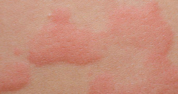 Miel artesanal causa anafilaxia en niño de 5 años