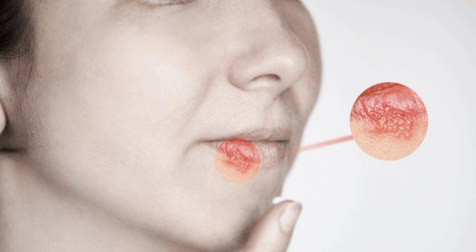 Utilización de genes impide replicación activa del virus del herpes latente