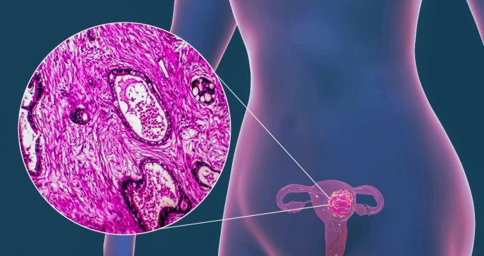 Cáncer cervicouterino incipiente: los desenlaces con la cirugía mínimamente invasiva son peores