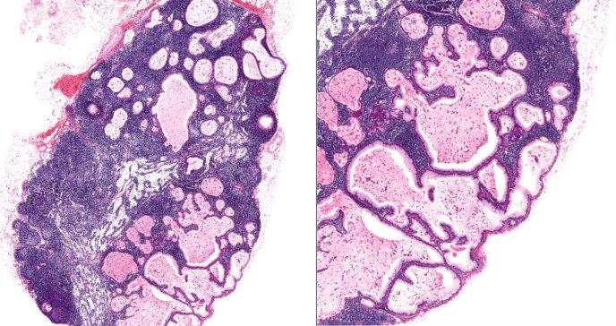 Científicos identifican causa genética de la endometriosis